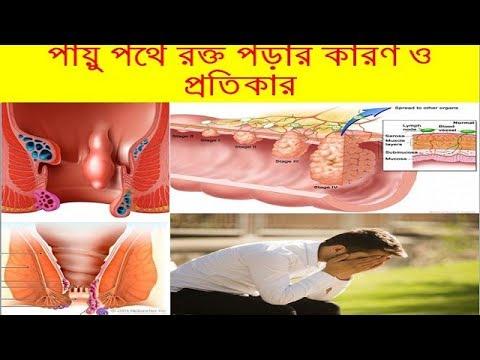 পায়ু পথে রক্ত পড়ার কারণ ও প্রতিকার-HEALTH TIPS IN BD   মলদ্বার দিয়ে রক্ত