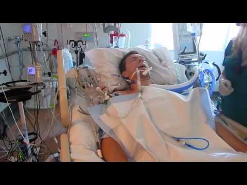 Xxx Mp4 Waking Up From Open Heart Surgery 3gp Sex