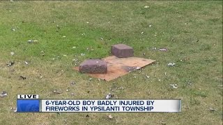 6-year-old injured in fireworks accident