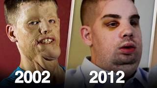 اسهتزئو به لان شكله قبيح لكن شاهد كيف اصبح بعد ٥ سنوات  جعلهم يندمون   !!