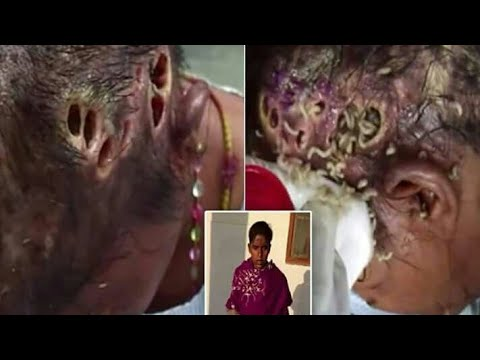 Xxx Mp4 Homeless Woman In India Has Head Infected With Maggots 3gp Sex