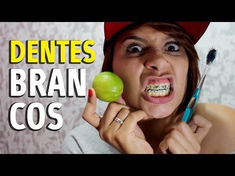 3 Maneiras De Clarear Os Dentes Em Casa Playithub Largest Videos Hub