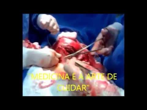 Cirurgia para retirada de MIOMA SUBMUCOSO
