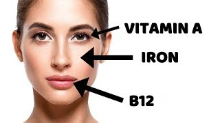 6 Nutrient Deficiencies That Show Up On Your Face
