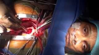 Awake Cardiac Surgery on a patient with