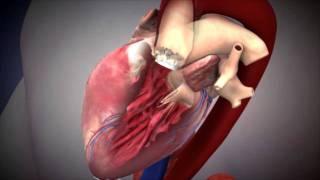 NUHCS - Transcatheter Aortic Valve Implantation (TAVI)