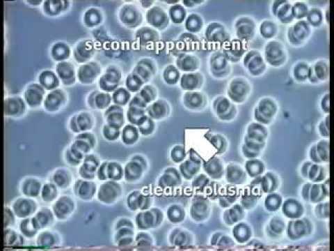 Live Blood Microscopy Demonstration Part 1