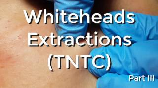 Whiteheads Extraction (TNTC) - Session I - Part 3 of 3