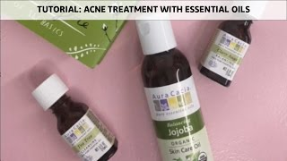 JUST THE ESSENTIALS: Acne Treatment Face Oil with Essential Oils | Adina Grigore