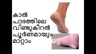 കാൽ പാദത്തിലെ വിണ്ടുകീറൽ പൂർണമായും മാറ്റാം (Malayalam) Crack Heels Home Remedy
