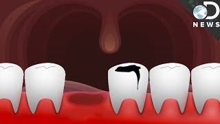 Could Humans Ever Regrow Teeth?