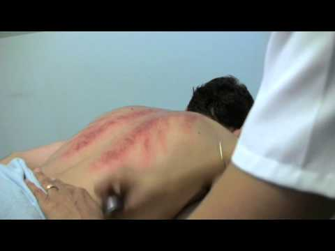 The Practice of Chinese Medicine What is Gua Sha