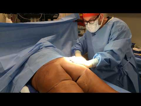 Xxx Mp4 Buttock Fat Transfer Brazilian Butt Lifting Liposuction By Dr Jason Emer 3gp Sex