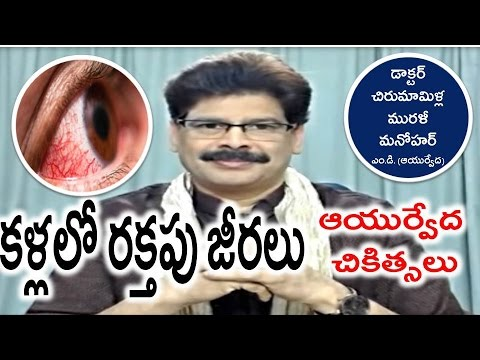 Bloodshot Eyes, Causes and Ayurvedic Treatments in Telugu by Dr. Murali Manohar Chirumamilla, M.D.