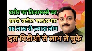 शरीर के तिल, मस्सा आदि का जीवन में महत्व, Janiye Sharir par Til aur Masse Ka Prabhav, Mahatva