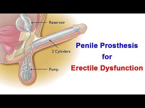 Erectile Dysfunction Surgery using Penile Prosthesis | Penile Prosthesis Implantation