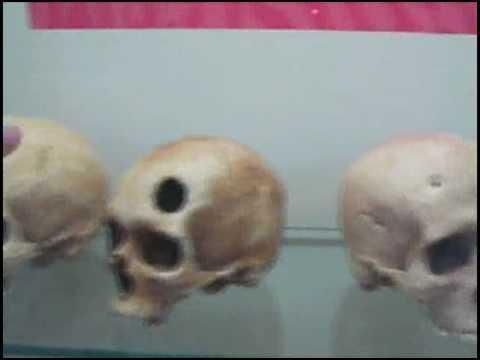 Museo de Antropologia Forense