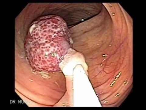 Endoscopy Polypectomy of Polyp of Descending Colon