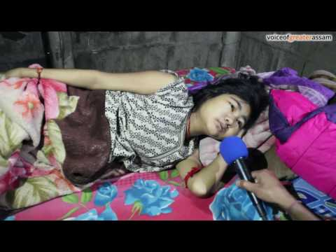 Xxx Mp4 Gohela Boro National Level Archer Suffering From Severe Illness 3gp Sex
