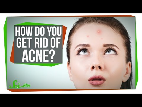 How Do You Get Rid of Acne
