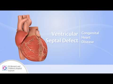 Xxx Mp4 Heart Conditions – Ventricular Septal Defect VSD 3gp Sex