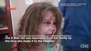 Powerful images of wounded Syrian girl go viral