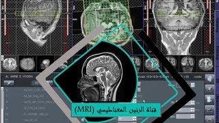 MR spectroscopy CSI (in English)