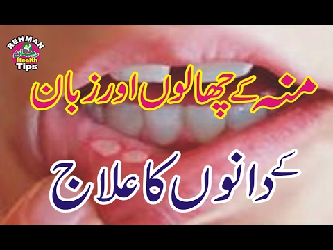 Muh Ke Chaale Ka Desi Ilaj | Mouth Ulcers | Health tips in urdu | chaale ka desi ilaj