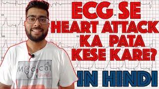 ECG reading in Hindi Language part 2 || How to read ECG signal part 2 || Medical Guruji