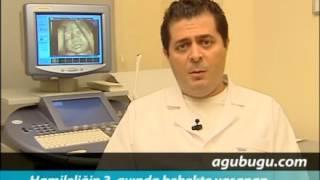 Hamilelikte 3. ay