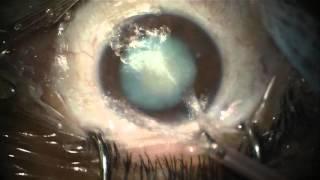 Cirugía catarata madura: facoemulsificación + LIO multifocal, capsulorexis bajo azul tripan