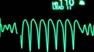 EKG Ritimleri Ve Asistoli / VF / VT