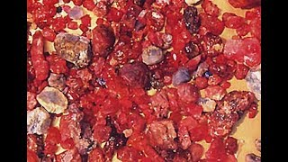 Treasure Hunting Rubies Of The Golden Triangle - Gem Mining Documentary