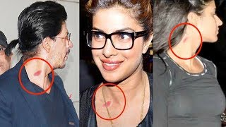 6 Bollywood Celebs Caught With Love Bites | Shahrukh, Priyanka, Katrina