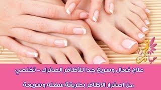 علاج فعال وسريع جداا للاظافر الصفراء - تخلصى من اصفرار الاظافر بطريقة سهله وسريعه