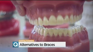 Adults With Crooked Smiles Looking For Alternatives To Braces
