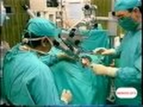 histerectomia extirpación útero por mioma y conservando los ovarios