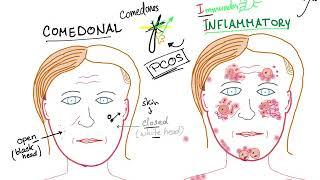 Acne Vulgaris (causes, subtypes and ttt)