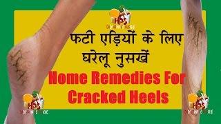 फटी एड़ी के लिए घरेलू उपचार  Home remedies for cracked heel in hindi