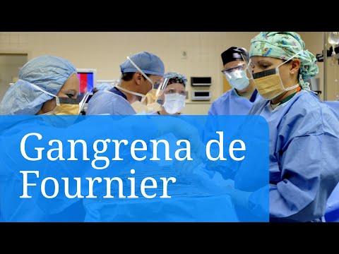 Gangrena de Fournier. Fotos e información sobre las causas y tratamientos