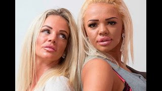 Plastic Surgery Mother And Daughter: I Let My Daughter Strip To Fund Our Addiction