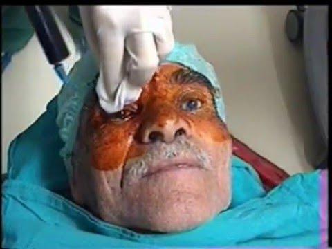 Göz cerrahisinde betadin batikon 3 dakika uygulanmalı