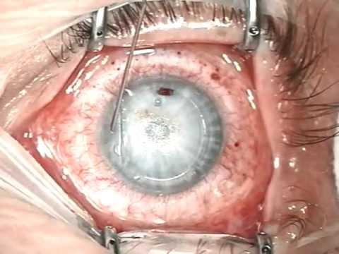 Xxx Mp4 Meine Augenlaser OP Lasik 19 02 2013 3gp Sex