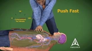 Cardiopulmonary Resuscitation - CPR - 3D Medical Animation