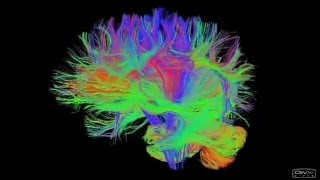 Networks in the brain at the Royal Society Summer Science Exhibition 2014