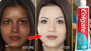 Top 5 Amazing Toothpaste Beauty Hacks । How to remove blackheads, Remove pimples & Whiten Skin Fast
