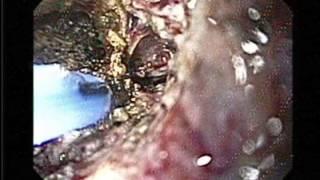 Clinical Application of Argon Plasma Coagulation in Gastrointestinal Endoscopy