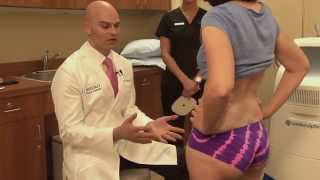 CoolSculpting of Outer Thigh Fat & Saddlebags