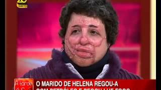 A Tarde é Sua - Queimadura na Face - 21.02.13 - TVI