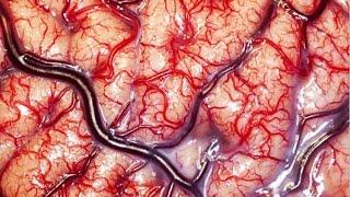 World's Greatest Brain Surgery (REMIX) Brain Hematoma Removal